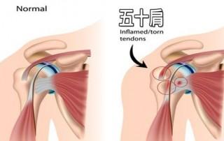 shoulder injur