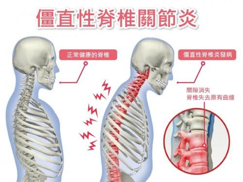強直性脊椎炎治療運動