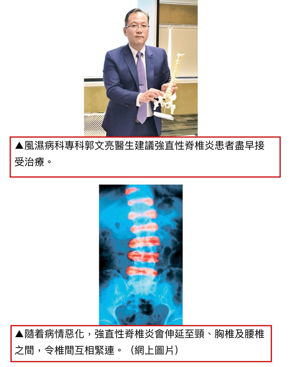 僵直性脊椎炎運動治療